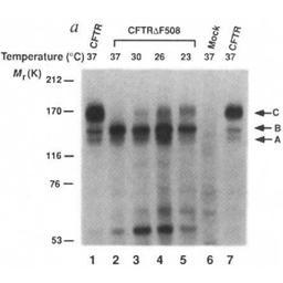 Processing of mutant cystic fibrosis transmembrane conductance regulator is temperature-sensitive