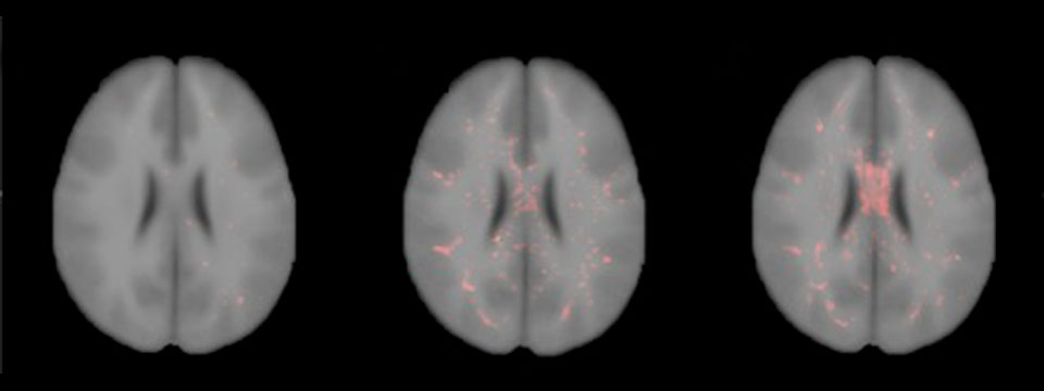 Axial view of control probable TBI