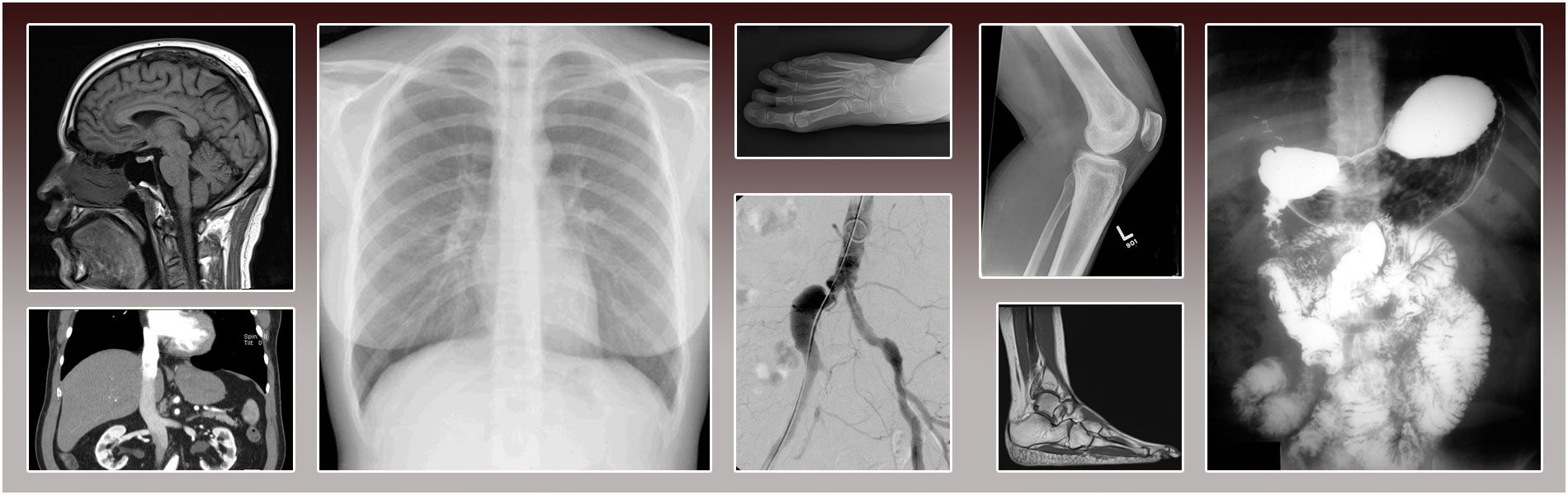 Collage of radiographic images