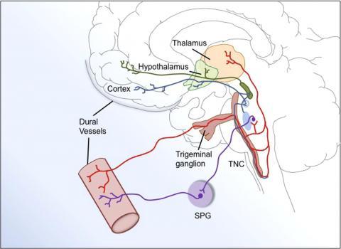 Medical illustration shows source of CGRP
