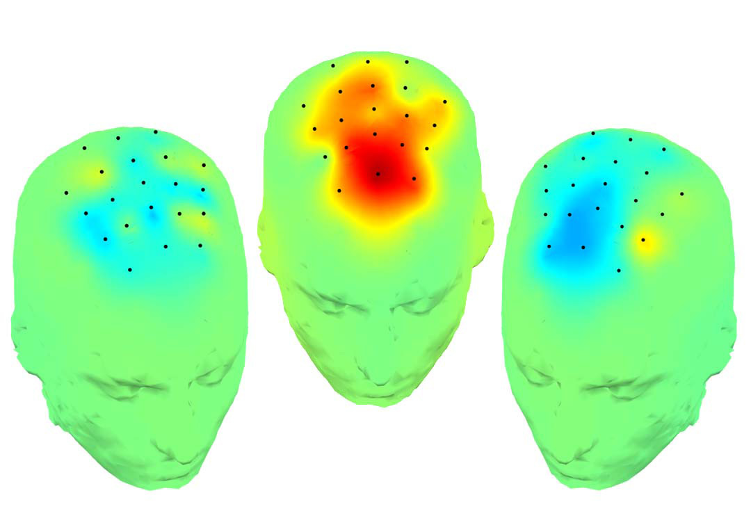Illustration mapping deep brain stimulation results