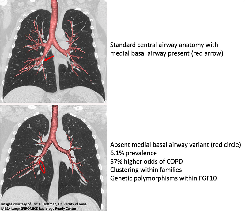 Genetic variation in lung anatomy may increase risk of COPD | Carver ...